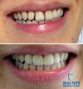 4 Front Teeth Veneers