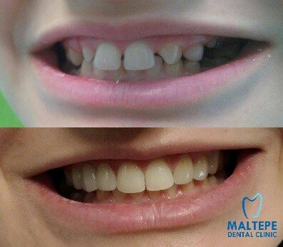 dental splints before veneers