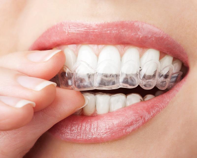 Maltepe dental clinlc invisialign