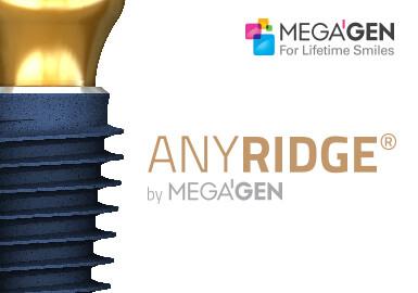 11logo de l'implant anyridge megagen