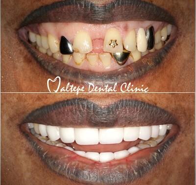 11un relooking extrême du sourire avant et après