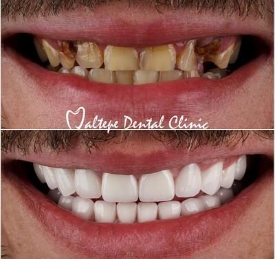 11transformation dentaire avant après