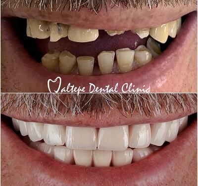 11traitement d'implants dentaires avant et après