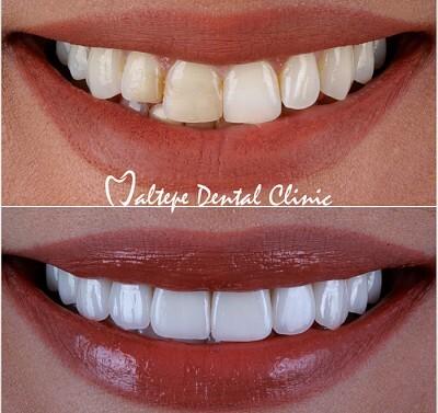 11facette dentaire avant après