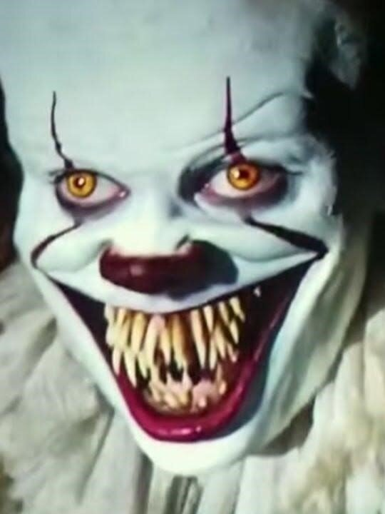 orthodontic-needs-of-pennywise-the-clown