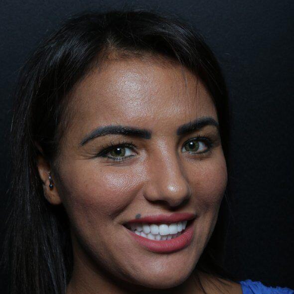 junge marokkanische Frau lächelnd Zahnkronen