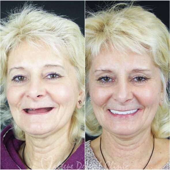 Zahnimplantat alte Frau vorher nachher Fotolächelnde Frau mit Zahnkronen