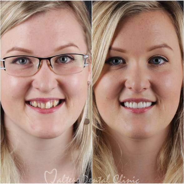 blonde Frau Zahnbehandlung vorher nachher