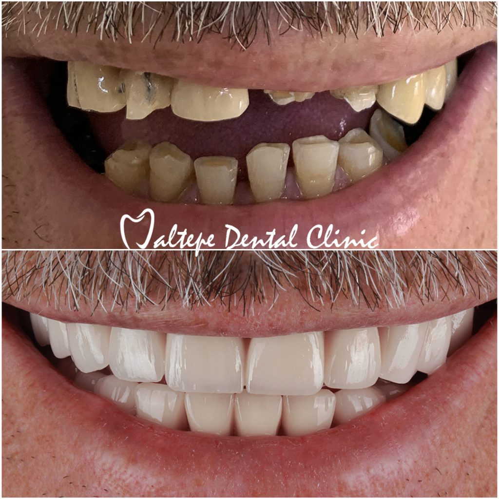 Dental Implant Patient Before after