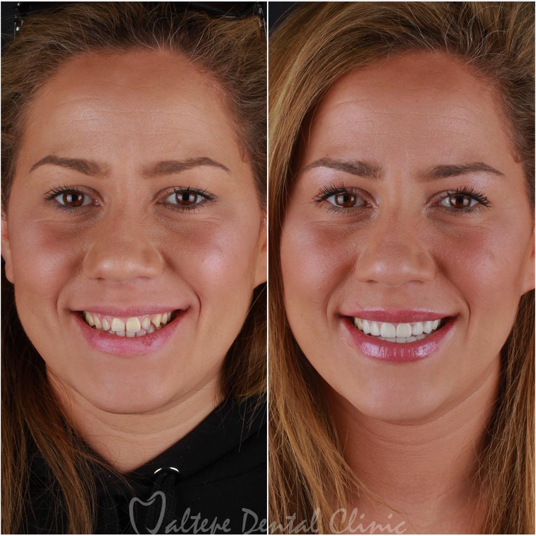 Veneer Treatment before after