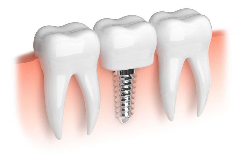 Dental Implant-2