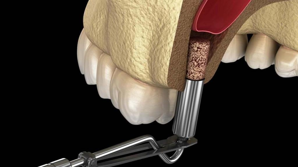 What is A Sinus Lifting